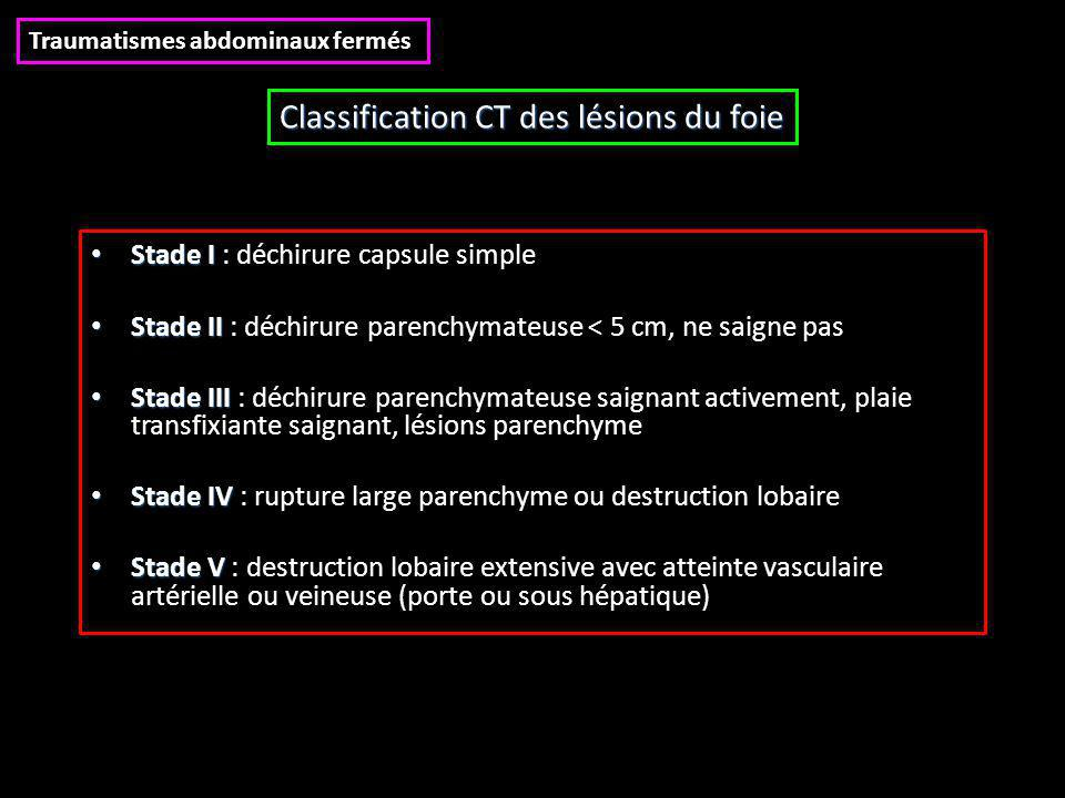 Classification CT des lésions du foie