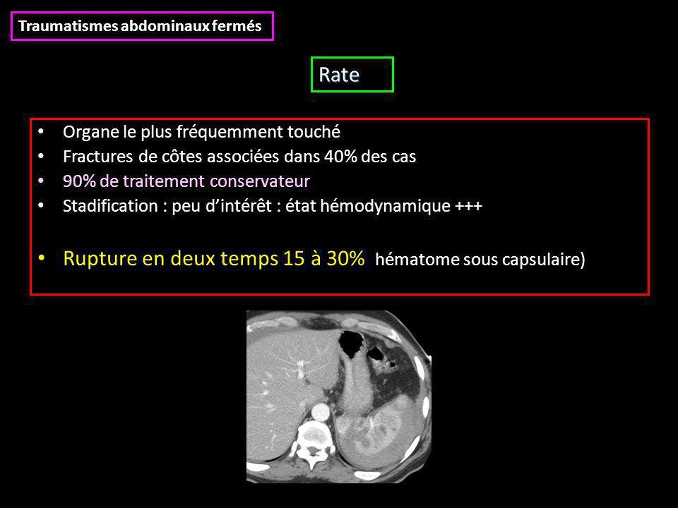 Rupture en deux temps 15 à 30% (hématome sous capsulaire)