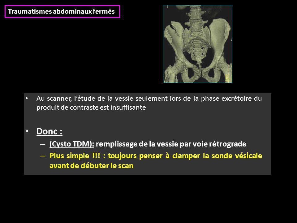 Donc : (Cysto TDM): remplissage de la vessie par voie rétrograde