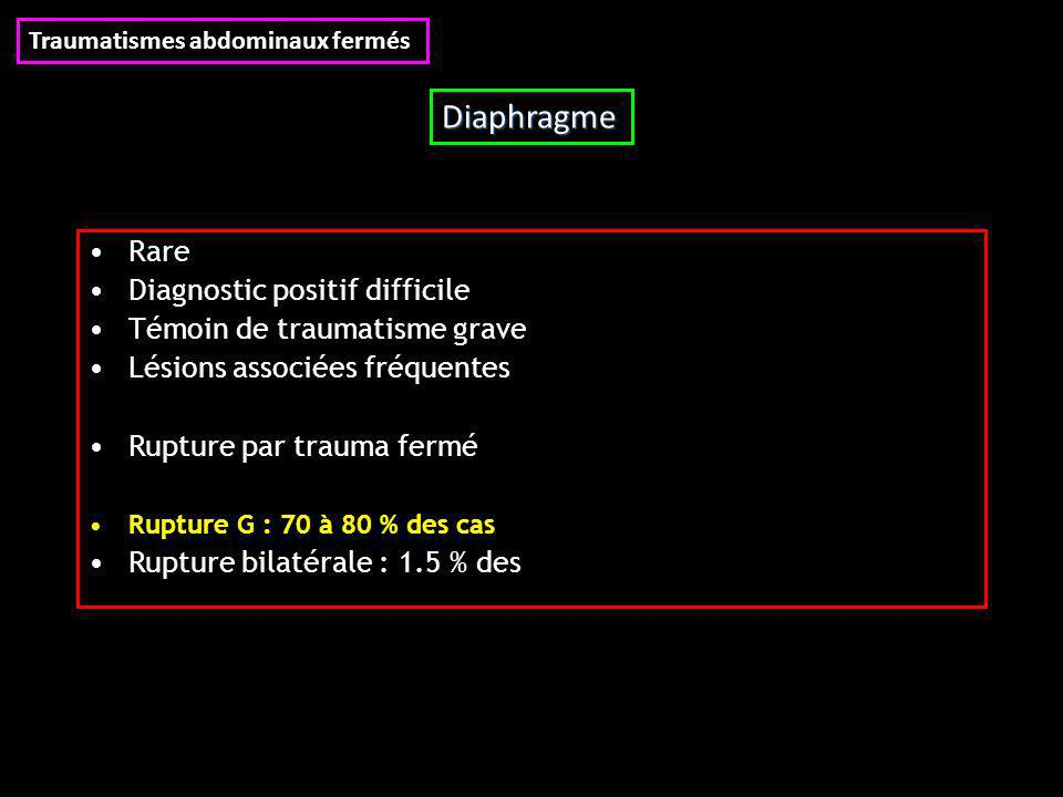 Diaphragme Rare Diagnostic positif difficile