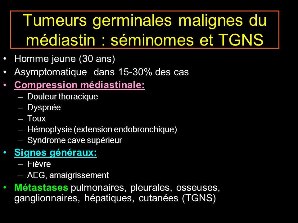 Tumeurs germinales malignes du médiastin : séminomes et TGNS
