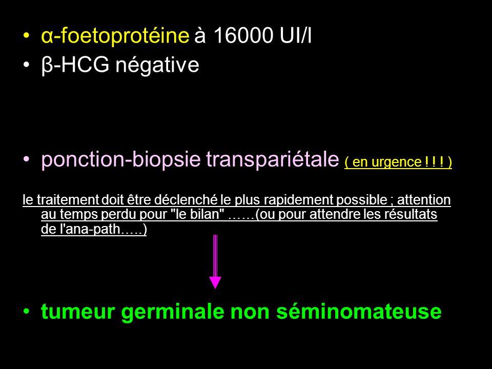 α-foetoprotéine à 16000 UI/l β-HCG négative