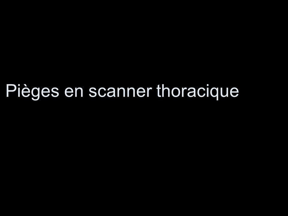 Pièges en scanner thoracique
