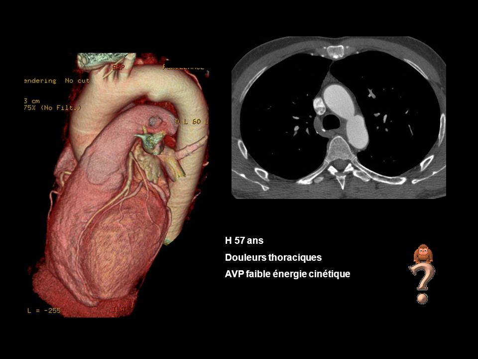 H 57 ans Douleurs thoraciques AVP faible énergie cinétique