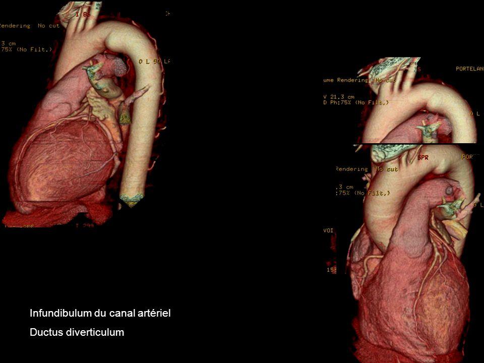 Infundibulum du canal artériel