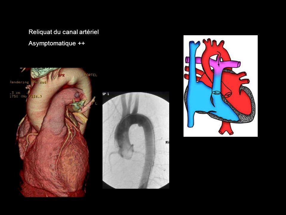Reliquat du canal artériel