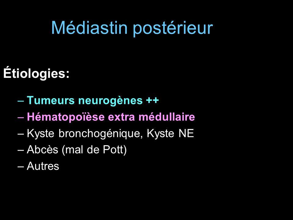 Médiastin postérieur Étiologies: Tumeurs neurogènes ++