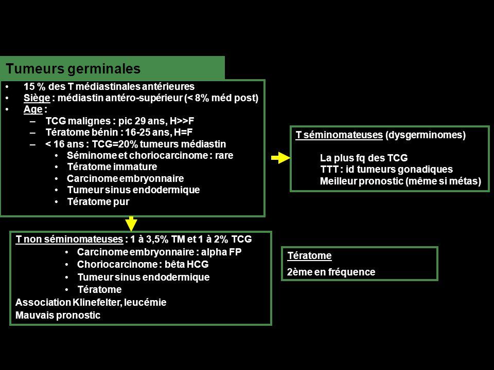 Tumeurs germinales 15 % des T médiastinales antérieures