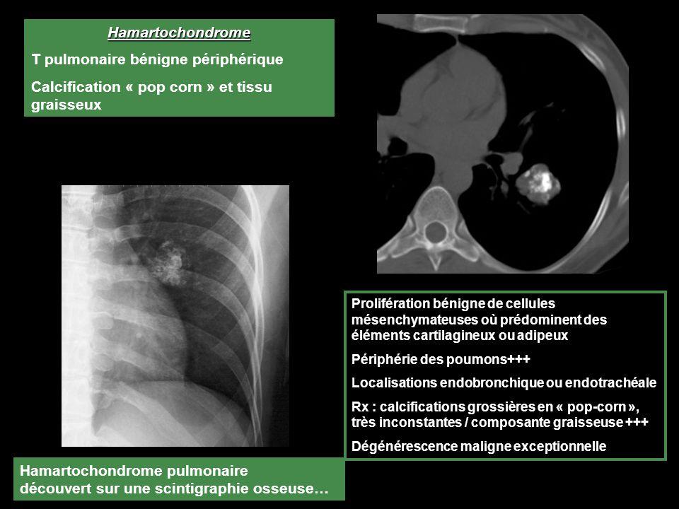 T pulmonaire bénigne périphérique
