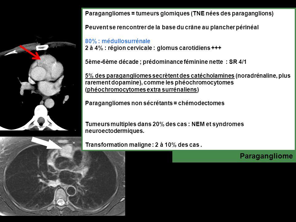 Paragangliomes = tumeurs glomiques (TNE nées des paraganglions)