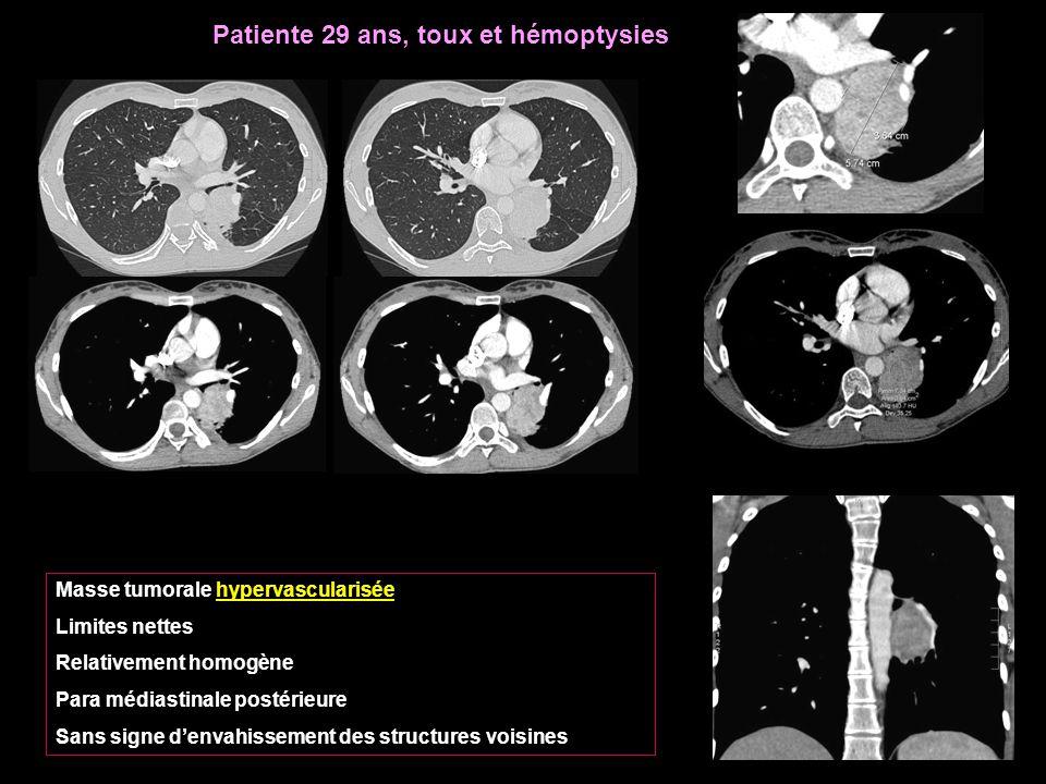 Patiente 29 ans, toux et hémoptysies
