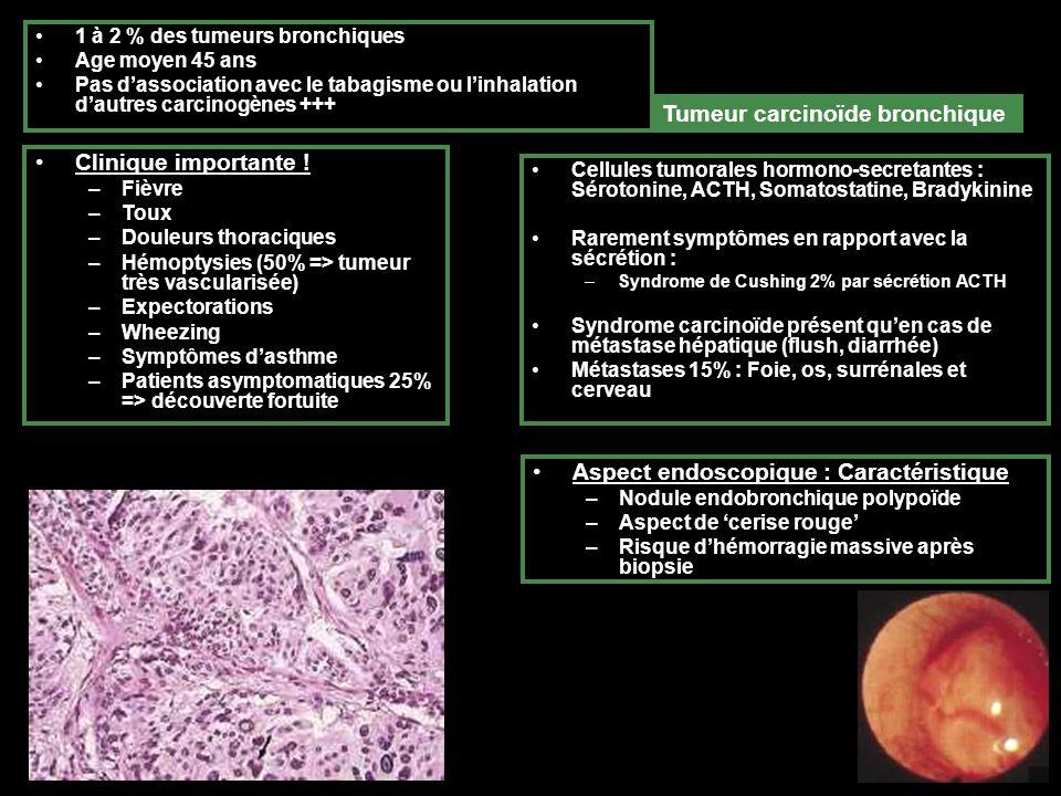 Tumeur carcinoïde bronchique