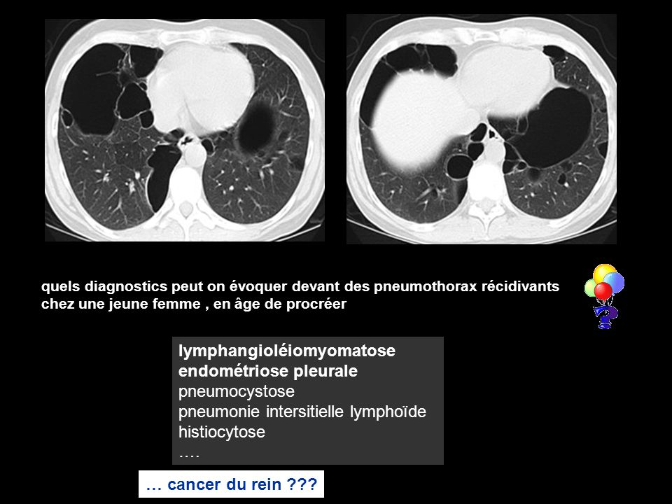 lymphangioléiomyomatose endométriose pleurale pneumocystose
