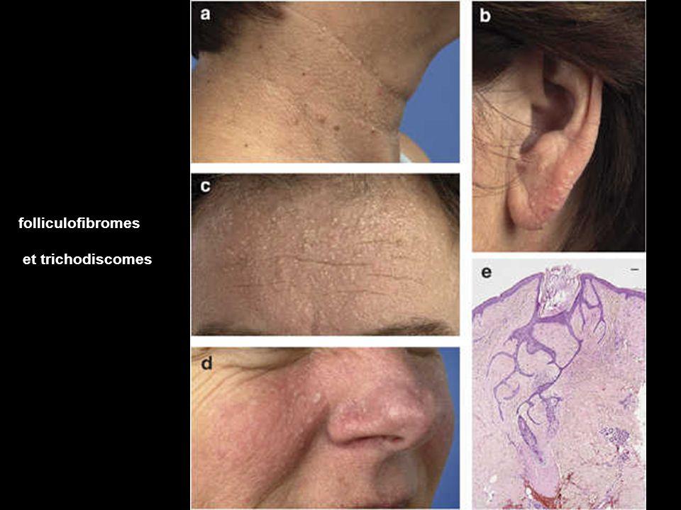 folliculofibromes et trichodiscomes