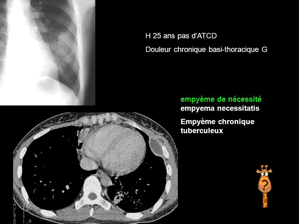 H 25 ans pas d'ATCD Douleur chronique basi-thoracique G. empyème de nécessité empyema necessitatis.