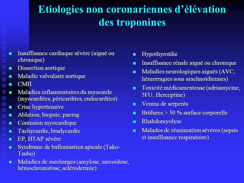 Etiologies non coronariennes d'élévation des troponines