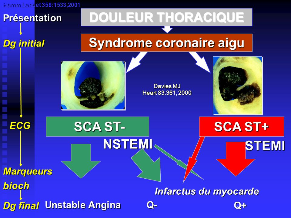 Syndrome coronaire aigu