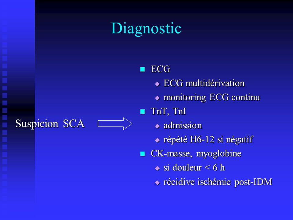 Diagnostic Suspicion SCA ECG ECG multidérivation