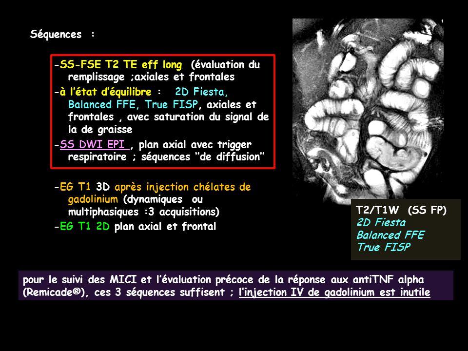 Séquences : -SS-FSE T2 TE eff long (évaluation du remplissage ;axiales et frontales.