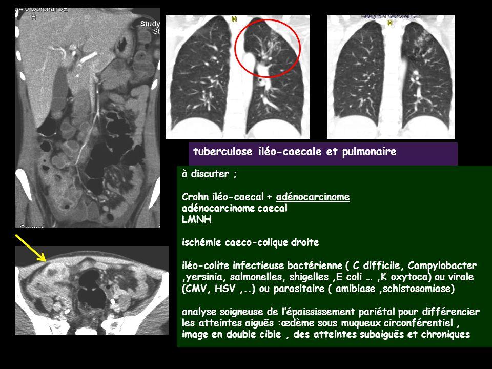 tuberculose iléo-caecale et pulmonaire