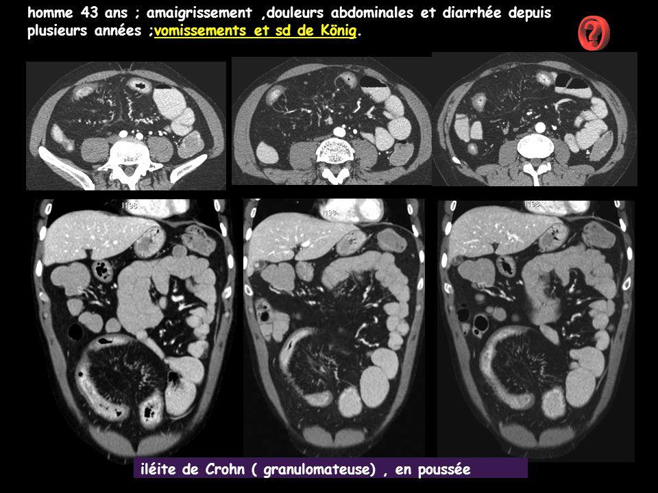 homme 43 ans ; amaigrissement ,douleurs abdominales et diarrhée depuis plusieurs années ;vomissements et sd de König.