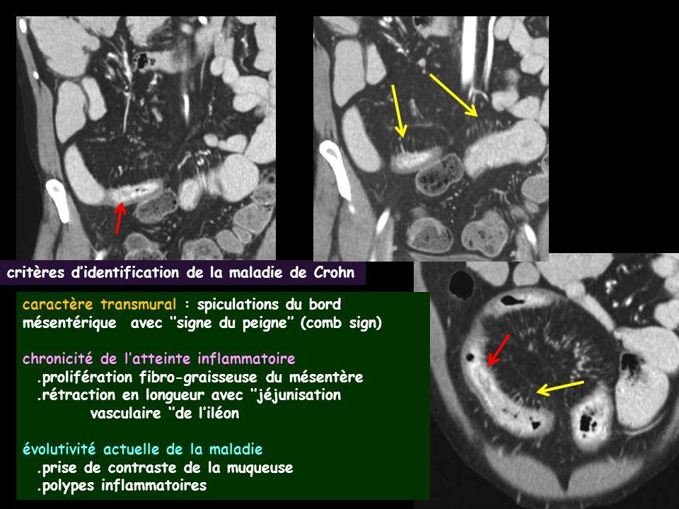 critères d'identification de la maladie de Crohn