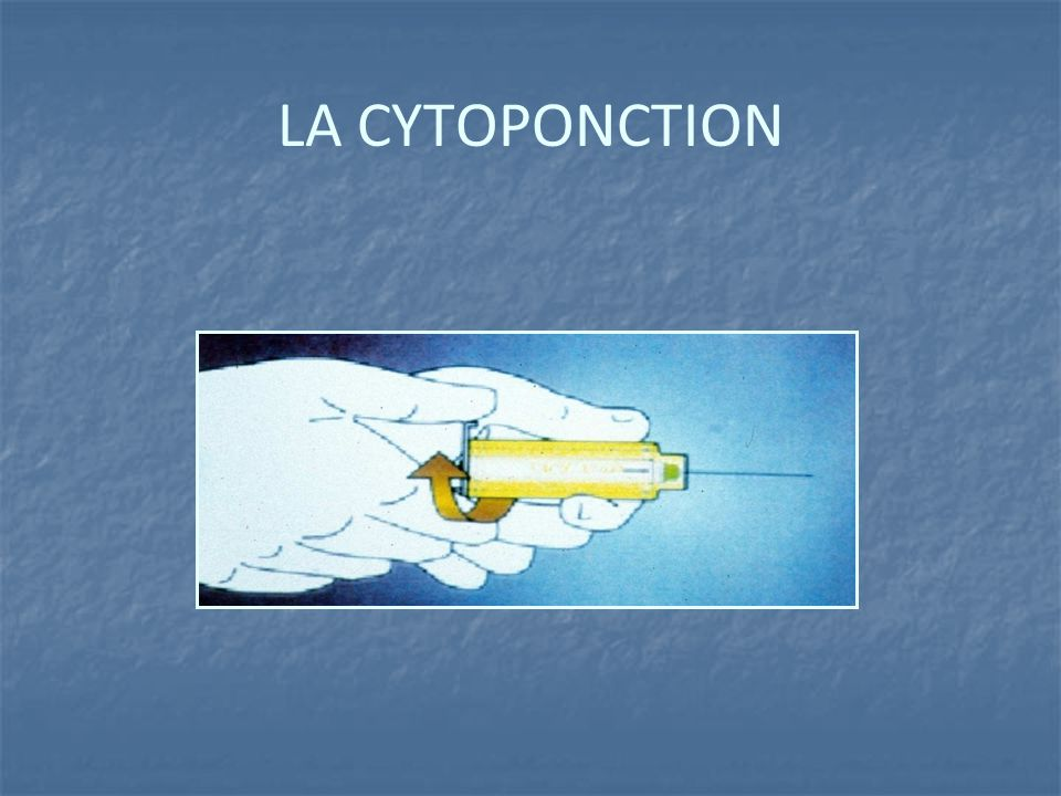 LA CYTOPONCTION