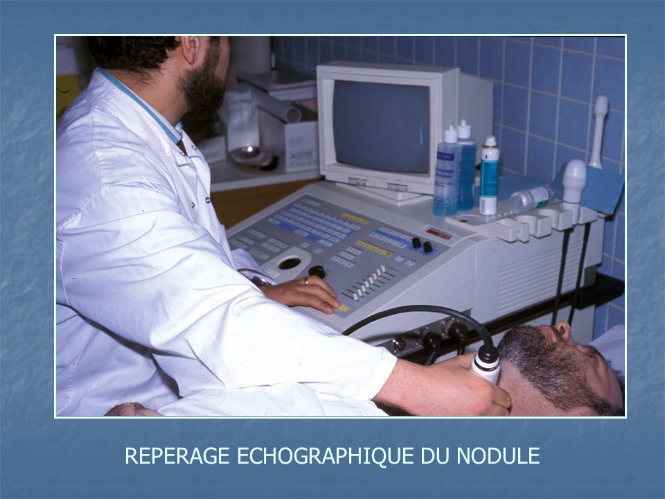 REPERAGE ECHOGRAPHIQUE DU NODULE