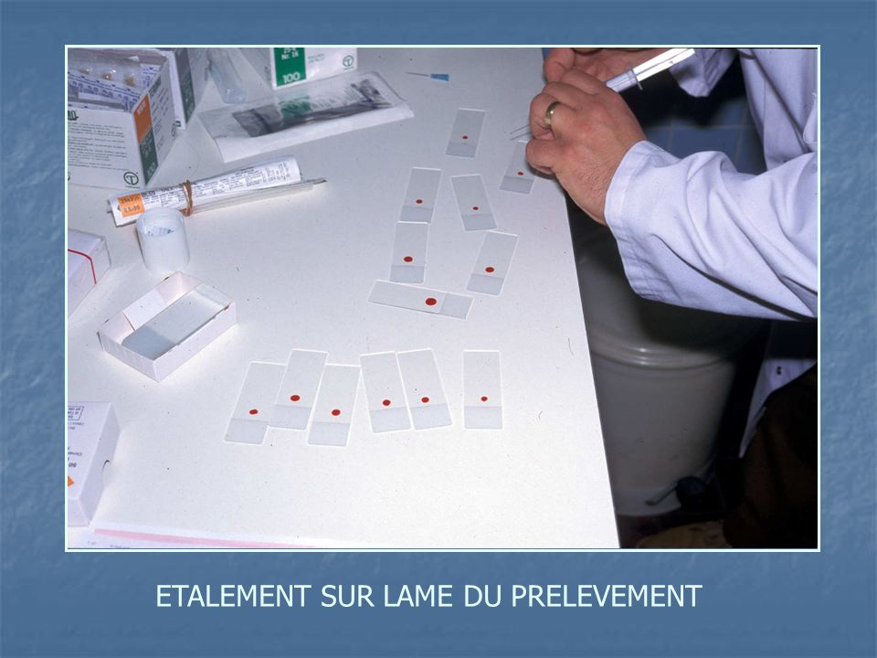 ETALEMENT SUR LAME DU PRELEVEMENT