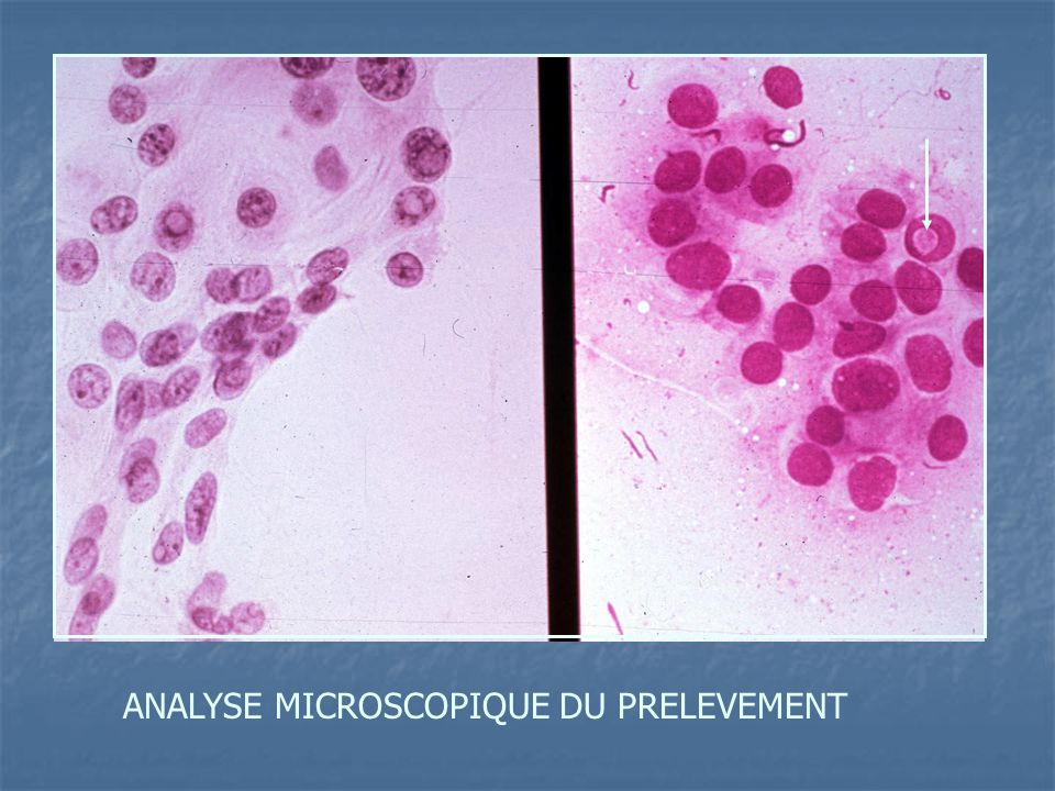 ANALYSE MICROSCOPIQUE DU PRELEVEMENT