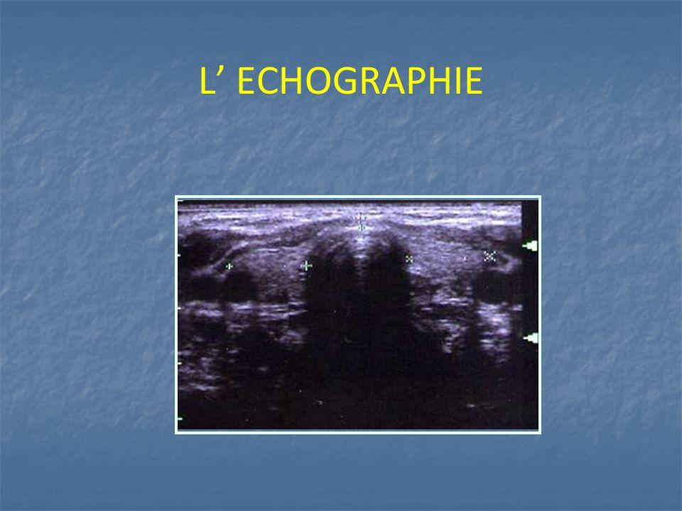 L' ECHOGRAPHIE