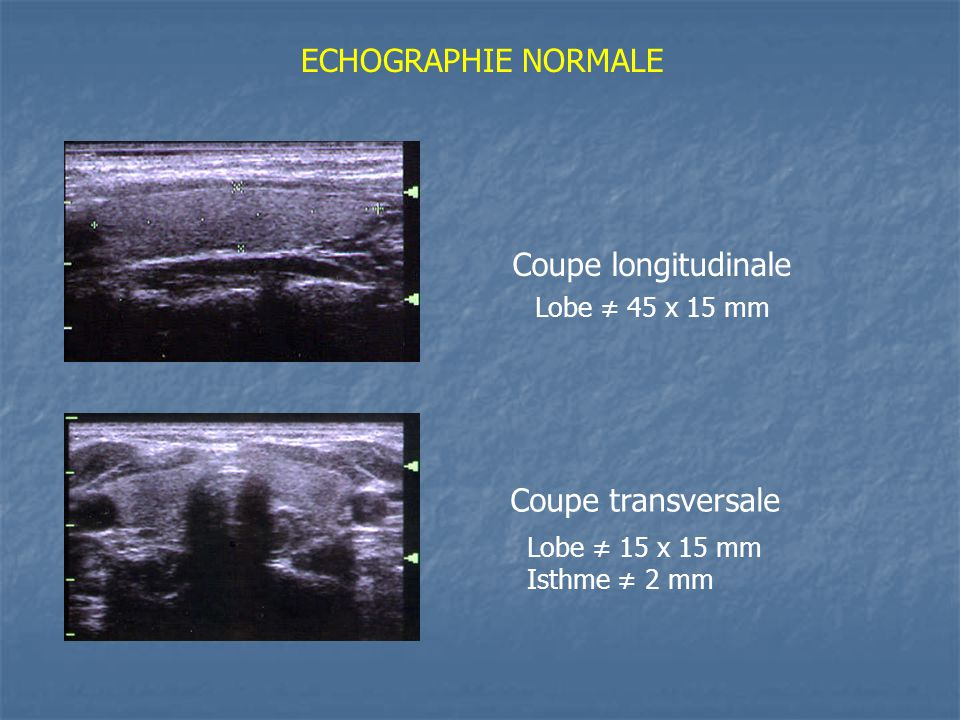 ECHOGRAPHIE NORMALE Coupe longitudinale Coupe transversale