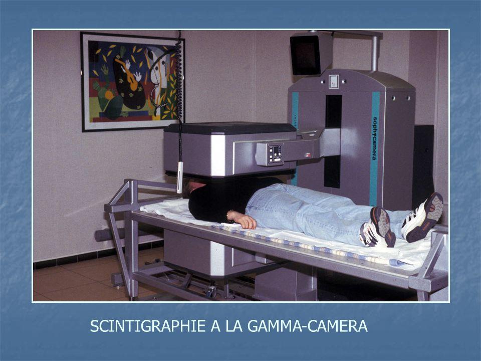 SCINTIGRAPHIE A LA GAMMA-CAMERA