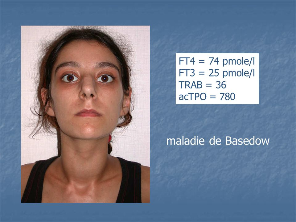 maladie de Basedow FT4 = 74 pmole/l FT3 = 25 pmole/l TRAB = 36