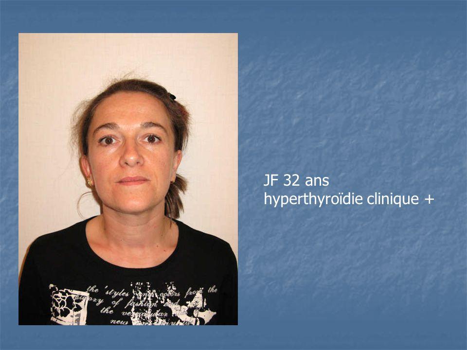 JF 32 ans hyperthyroïdie clinique +