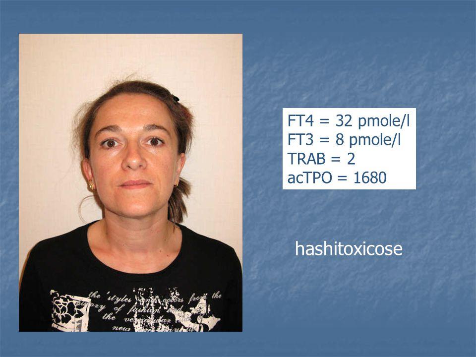 FT4 = 32 pmole/l FT3 = 8 pmole/l TRAB = 2 acTPO = 1680 hashitoxicose