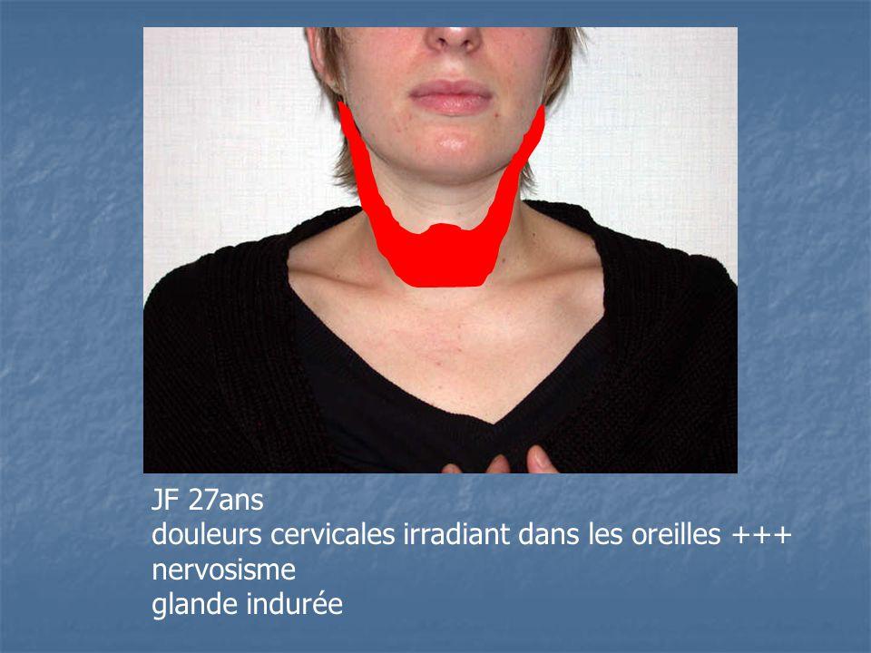 JF 27ans douleurs cervicales irradiant dans les oreilles +++ nervosisme glande indurée