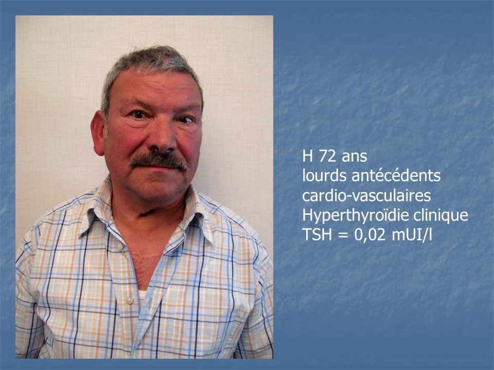 H 72 ans lourds antécédents cardio-vasculaires Hyperthyroïdie clinique TSH = 0,02 mUI/l