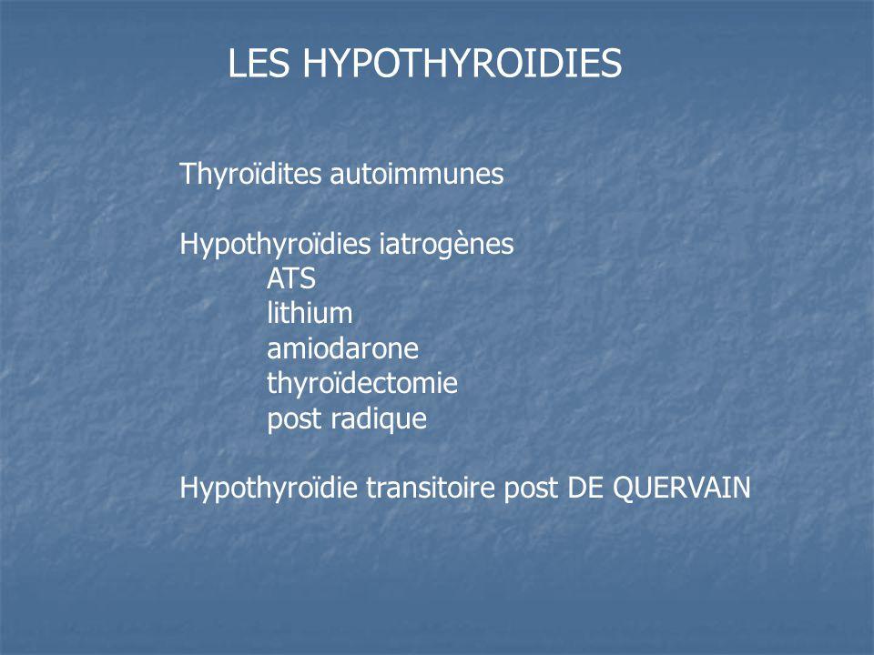 LES HYPOTHYROIDIES Thyroïdites autoimmunes Hypothyroïdies iatrogènes