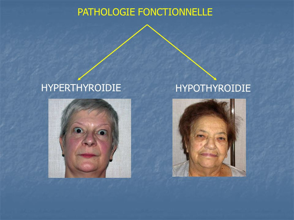 PATHOLOGIE FONCTIONNELLE