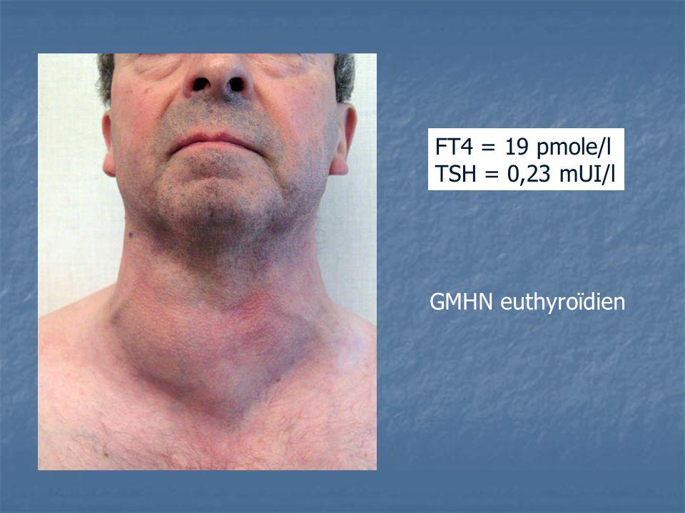 FT4 = 19 pmole/l TSH = 0,23 mUI/l GMHN euthyroïdien