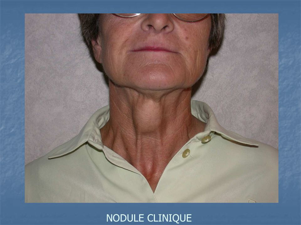 NODULE CLINIQUE