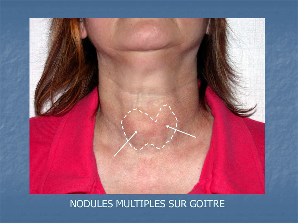 NODULES MULTIPLES SUR GOITRE