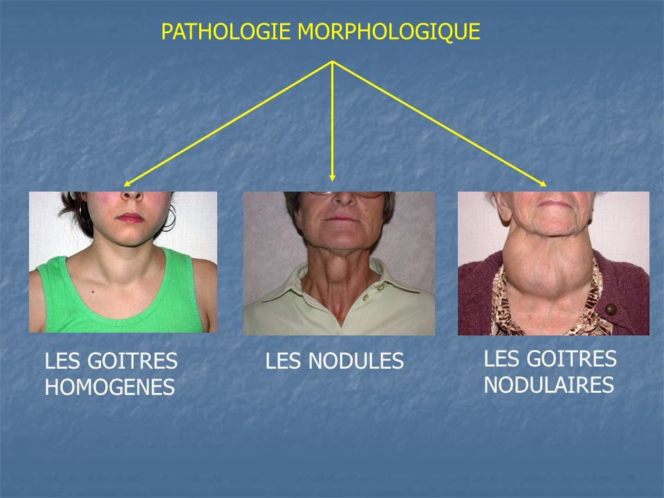 PATHOLOGIE MORPHOLOGIQUE