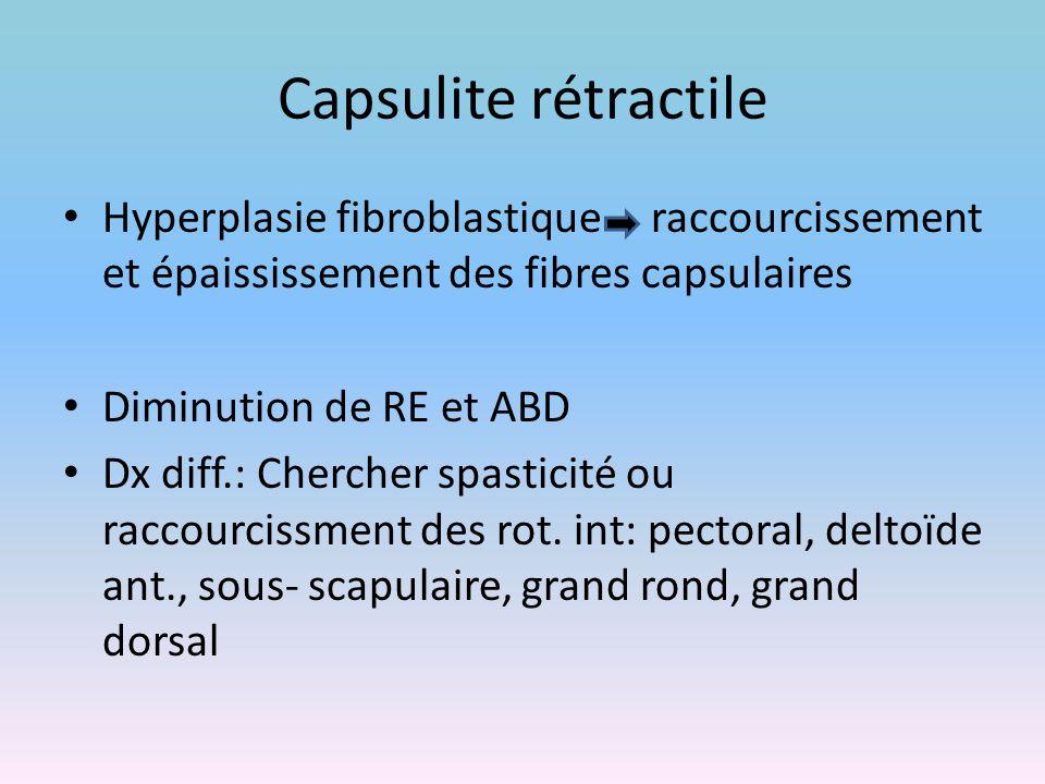 Capsulite rétractile Hyperplasie fibroblastique raccourcissement et épaississement des fibres capsulaires.