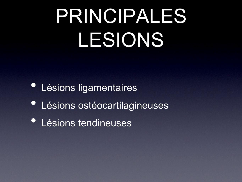 PRINCIPALES LESIONS Lésions ligamentaires Lésions ostéocartilagineuses