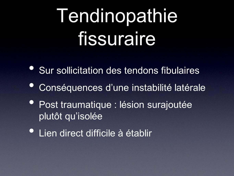 Tendinopathie fissuraire