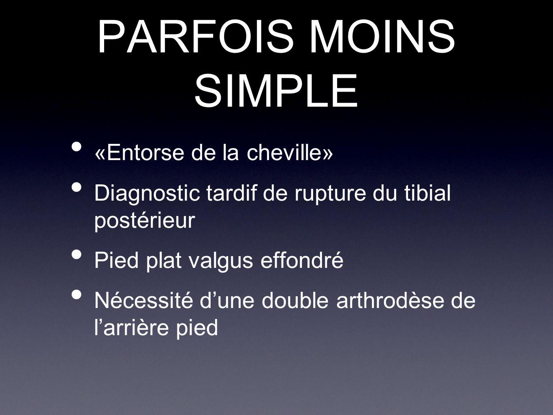 PARFOIS MOINS SIMPLE «Entorse de la cheville»