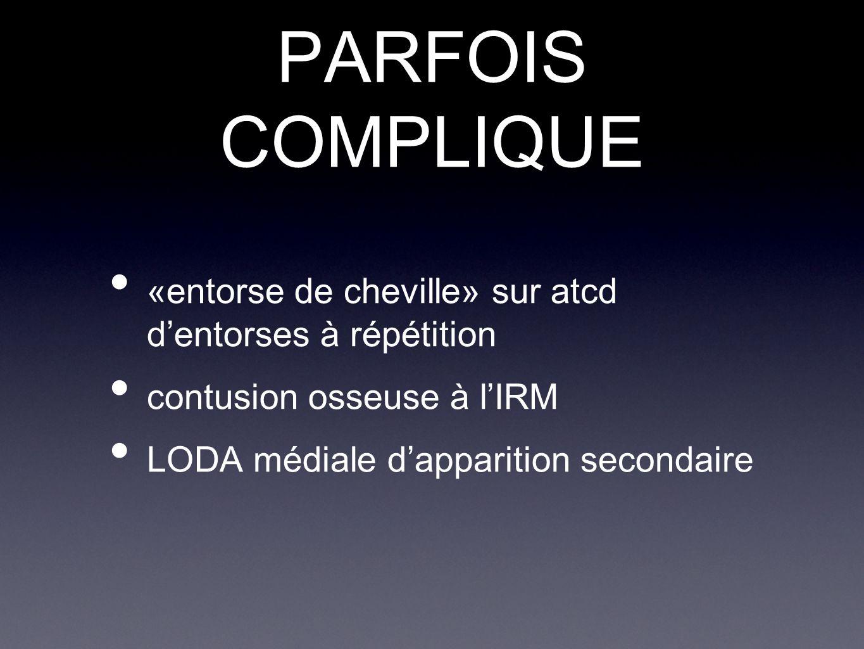 PARFOIS COMPLIQUE «entorse de cheville» sur atcd d'entorses à répétition. contusion osseuse à l'IRM.