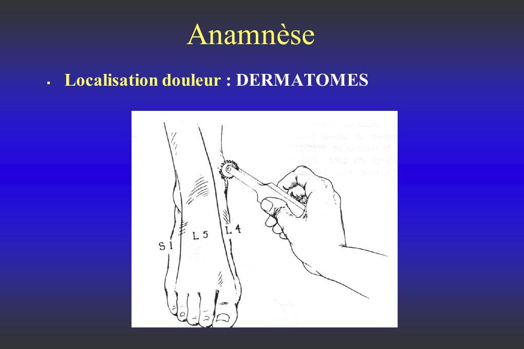Anamnèse Localisation douleur : DERMATOMES